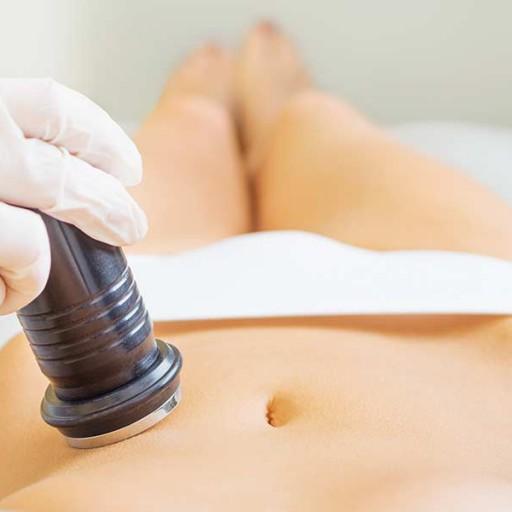 tratamiento-de-cavitación-en-Cuenca